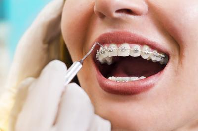 Inilah yang Harus Diperhatikan Jika Pasang Kawat Gigi