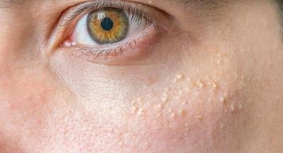 Beauty Tips: Cara Menghilangkan Milia, Bintik Putih di Bawah Mata Secara Efektif