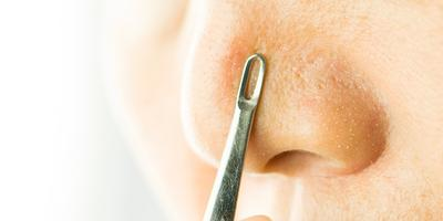 Beauty Hack: Cara Hilangkan Komedo dengan Pasta Gigi