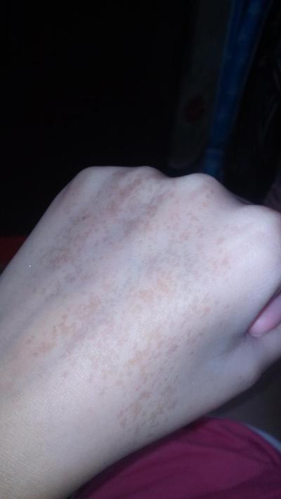 [FORUM] Ada yang Punya Freckles Hitam Di Tangan?