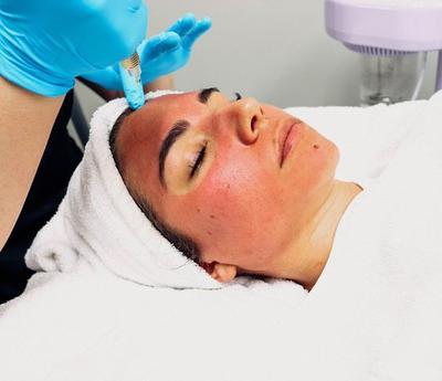 Skincare 101: Vampire Facial, Perawatan Wajah dengan Darah, Apakah Efektif?