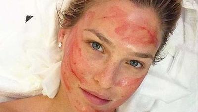 Manfaat Vampir Facial