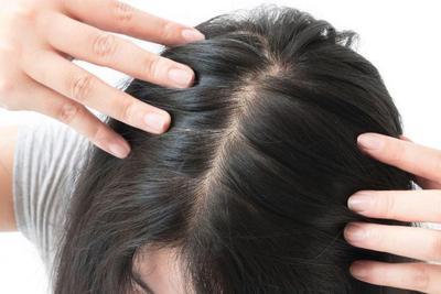 Trend 'No-Shampoo' Bukan Berarti Rambutmu Kotor