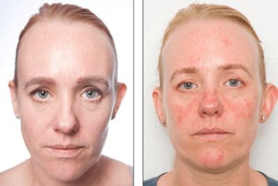 Resiko yang akan Dialami Kulit Saat Terkena Kosmetik Kedaluwarsa