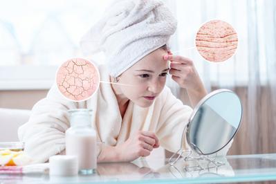 Perbedaan Kulit Kering dan Dehidrasi Serta Jenis Skincare yang Cocok Digunakan